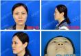 【亲身经历】南宁梦想整形周维志取鼻子注射物+膨体隆鼻全过程