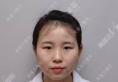 【真人案例】武汉美基元整形医院项利姣院长做的芭比电眼双眼皮
