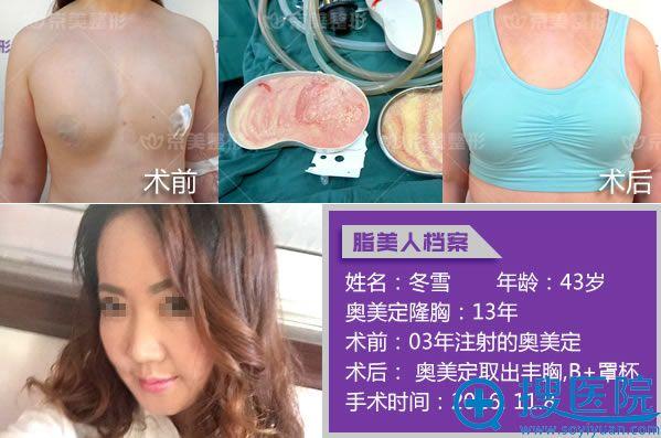 北京京美刘成胜奥美定取出成功案例