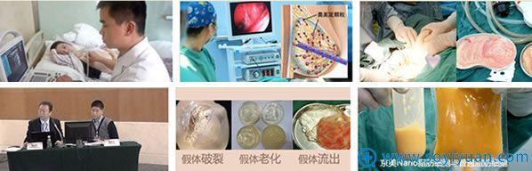 北京京美取奥美定-自体脂肪隆胸手术过程