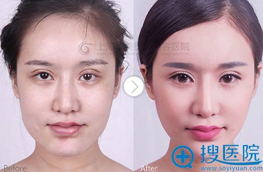 上海华美下颌角+全面部自体脂肪填充对比案例