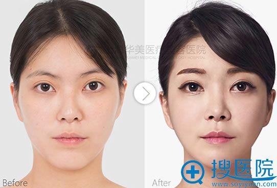 上海华美鼻部综合整形+V-Line成形术对比案例