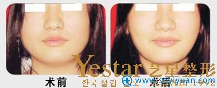 上海Yestar艺星吸脂瘦脸案例对比照