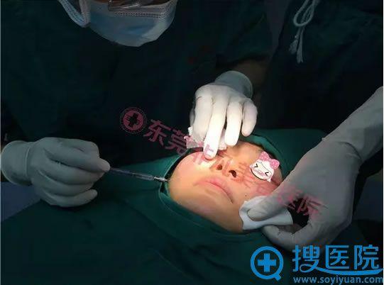 肿胀麻醉既可以让求美者在没有疼痛的情况下完成治疗,又能起到止血及分离组织的作用,术中几乎无出血。
