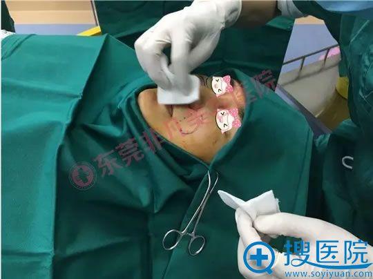 虽然光纤热塑是微创手术,但是术前的消毒工作也非常仔细