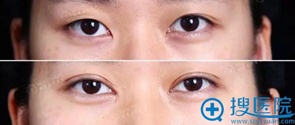切开双眼皮+无痕开内眼角前后对比