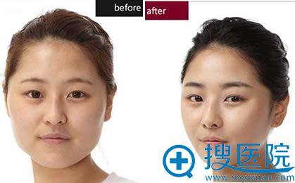上海伊莱美丰额头+颧骨整形案例对比