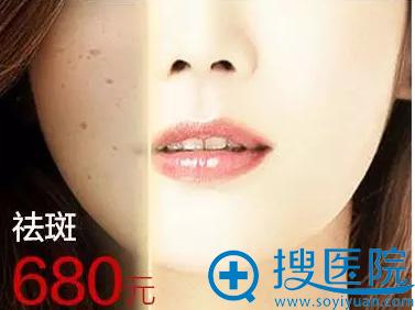 福州名韩整形美容医院祛斑特价680元