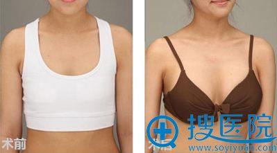 新疆华美王超杰内窥镜隆胸术案例对比