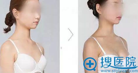 新疆华美3D内窥镜隆胸术案例对比