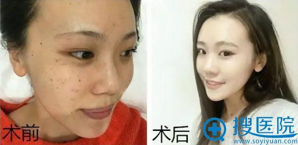 福州名韩整形美容医院韩国8层净斑祛斑效果