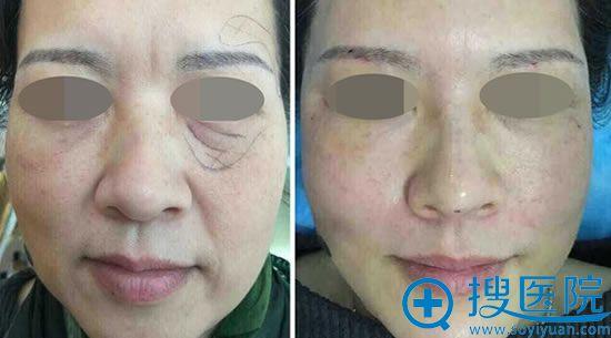 50岁阿姨面部线雕前后效果对比