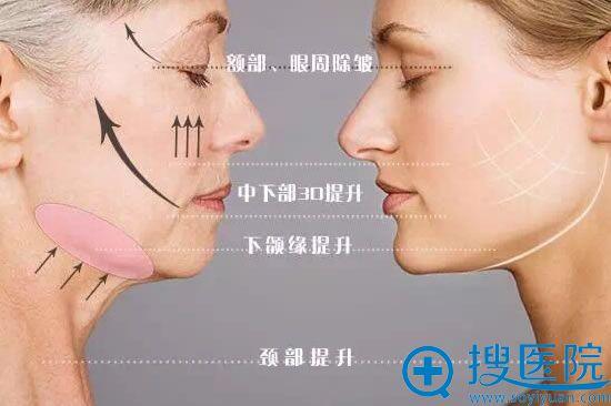 面部线雕效果示意图
