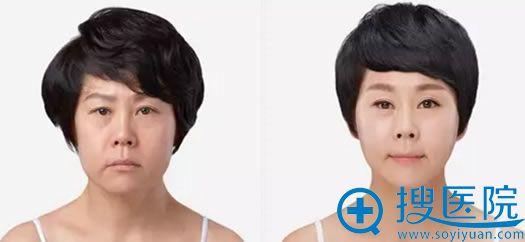 韩国原辰整形外科医院自体脂肪填充案例