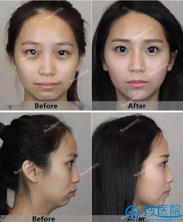 温州艺星苦瓜脸改造前后照片