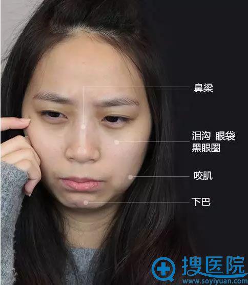 根据暄暄脸型选择玻尿酸、瘦脸针综合改善
