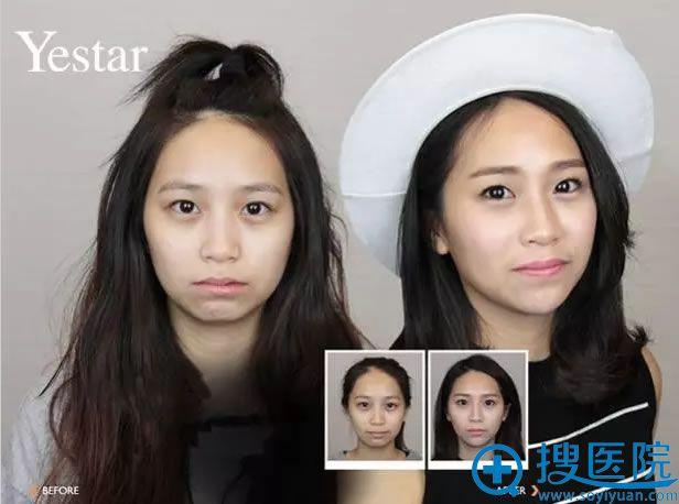 温州艺星如何用玻尿酸+瘦脸针让苦瓜脸变成微笑脸