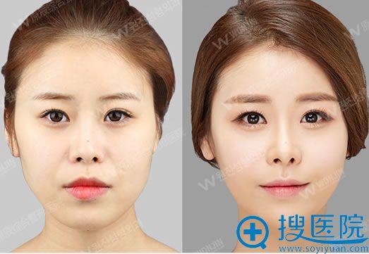 韩国原辰自体脂肪面部填充案例