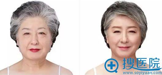 韩国原辰自体脂肪面部填充效果