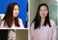 【杭州yestar案例】花3000元在杭州艺星做完双眼皮7天恢复图片
