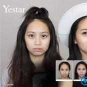 温州艺星玻尿酸瘦脸针让苦瓜脸变笑脸 瘦脸1次+3支玻尿酸4200元