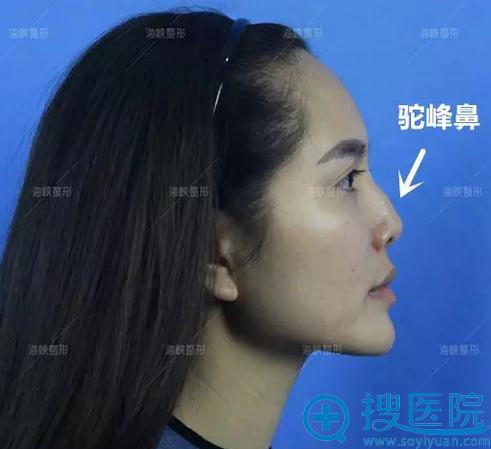 术前驼峰鼻侧面照片