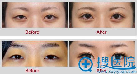 黄鲜双眼皮术前术后对比效果