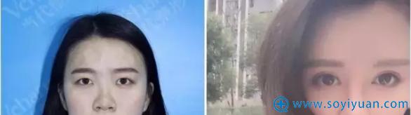 重庆当代黄鲜阿尔法美眼案例