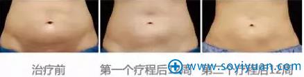 酷塑冷冻减脂腹部效果图