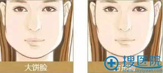 大饼脸、方形脸示意图