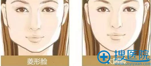 菱形脸、大圆脸示意图