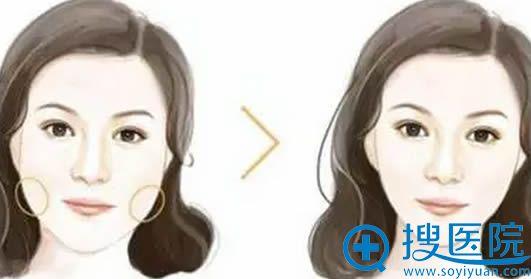 大饼脸方案_瘦脸针+玻尿酸丰下巴前后对比效果
