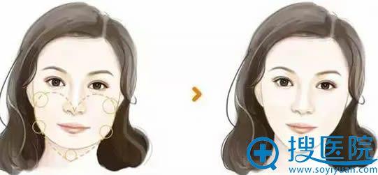 大圆脸方案_瘦脸针+玻尿酸丰苹果肌效果对比