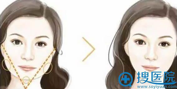 方形脸方案:瘦脸针+玻尿酸丰下巴效果对比