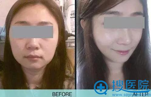 上海华美注射玻尿酸瘦脸针案例对比