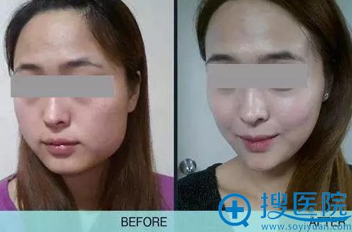 上海华美玻尿酸丰下巴+瘦脸针案例对比