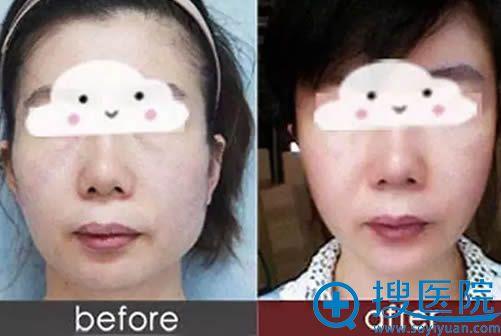 上海华美玻尿丰下巴+酸瘦脸针效果对比