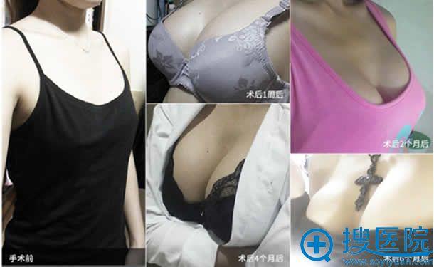 4S动感丰胸案例_广大整形医院