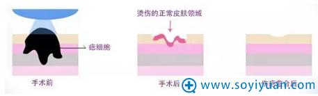 激光祛痣的原理图