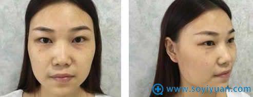 在韩辰做鼻子整形手术前照片