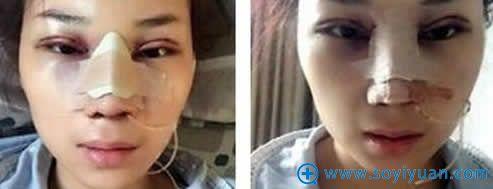 昆明韩辰做完隆鼻和鼻翼缩小手术照片
