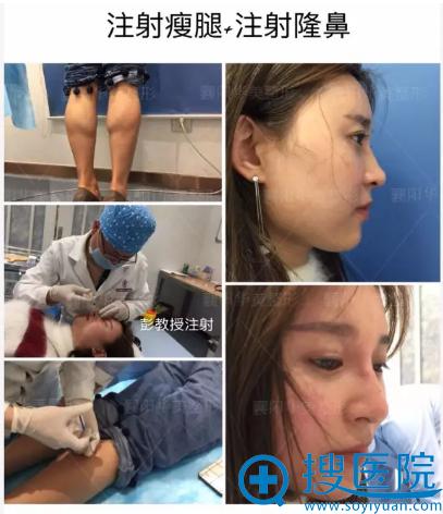 瘦腿+注射隆鼻过程