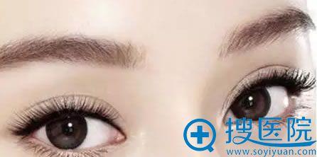 上海华美许再荣院长解说双眼皮术后护理注意事项