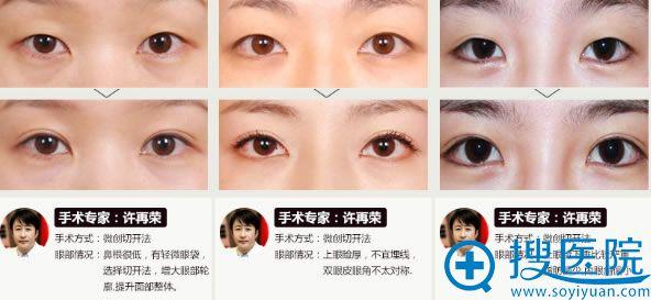 上海华美许再荣院长双眼皮案例