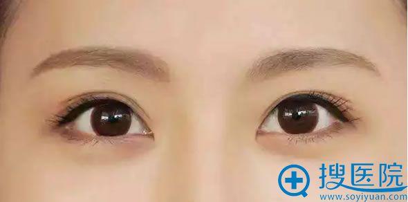 【中山美南华科普】哪种韩式半永久眉形自然适合自己