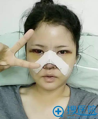 在韩国巴诺巴奇做面部轮廓和眼鼻整形术后第三天
