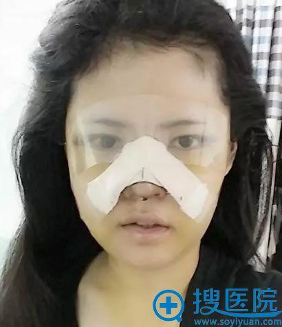 面部轮廓和眼鼻整形术后第五天