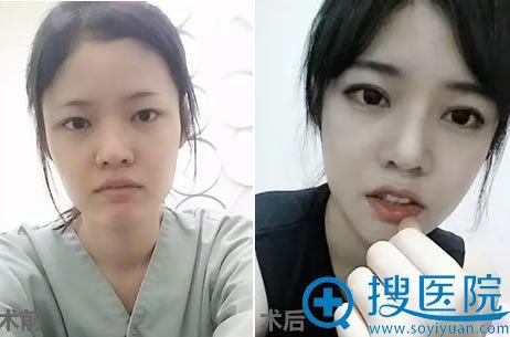 在韩国巴诺巴奇做面部轮廓和眼鼻整形100天前对比效果