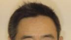 【日本名医介绍】脸部提升抗衰隆鼻专家——宇津木龙一
