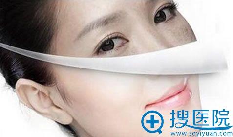 汕头曙光梁威杰医生说激光祛斑做好相应护理一般是不会反弹的